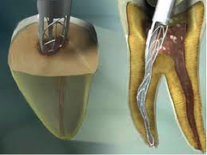 SAF root canal