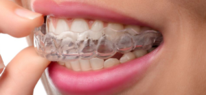 exceed aligners Auckland