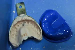 mouthguard-creation-dentist-auckland