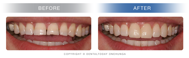 Cosmetic Dentistry Auckland